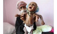 """شبح الموت يرفرف فوق رؤوس الأطفال الجوعى في """"اليمن الحزين"""""""