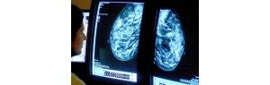دراسة تحذر الناجيات من سرطان الثدي من المشاكل النفسانية المزمنة