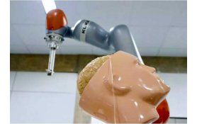 USP researchers develop robot to assist in neurosurgery