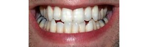 University creates natural toothpaste that whitens and rebuilds tooth enamel