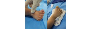 Doctor waives payment and operates baby without charging fees