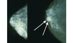 Treatment can make breast cancer regress 6 times faster